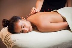 Military Acupuncture Special in Fort Carson, Colorado