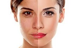 Best microderm or anti aging facial in Fort Carson, Colorado